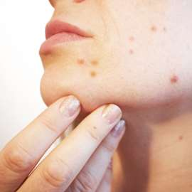 Acne doesn't just put a strain on the body